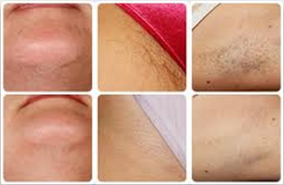 result of laser hair removal