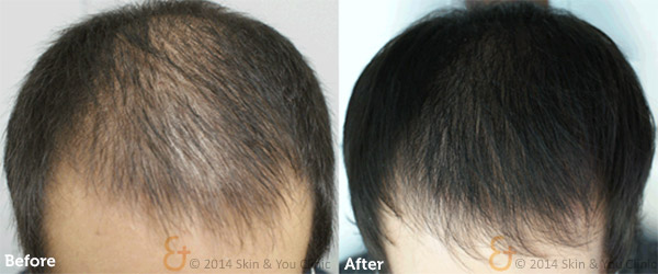 Hair Regrowth Procedure