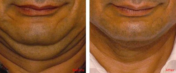 Combination Of Skin Tightening Amp Accent Ultra