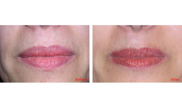 Lip eczema - Atopic Skin Disease