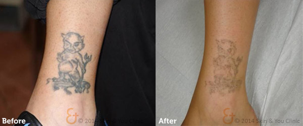 Painless Tattoo Removal