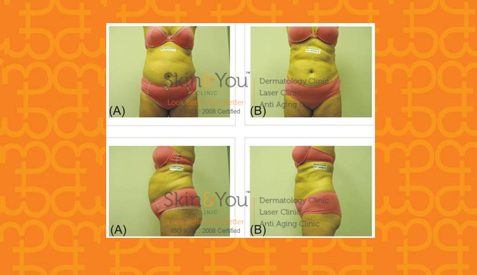 Accent Ultra Body Shaping