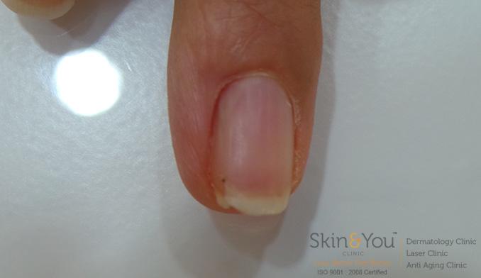 Splitting / Peeling / Brittle Nails