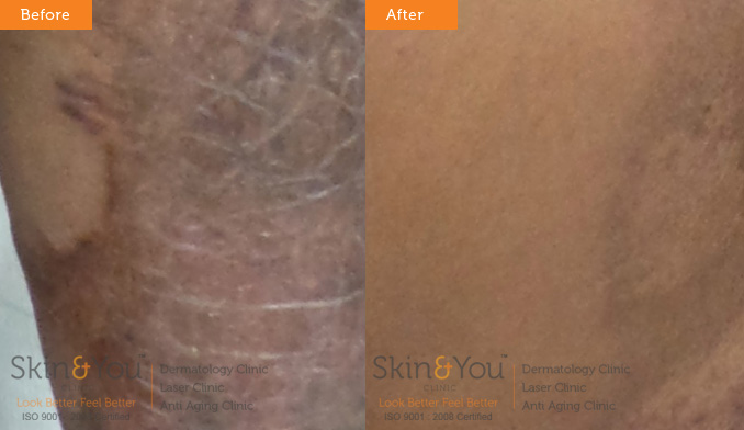 Burn Scars Treatment