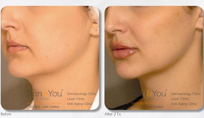 Chin / Jaw Line Skin Tightening Treatment