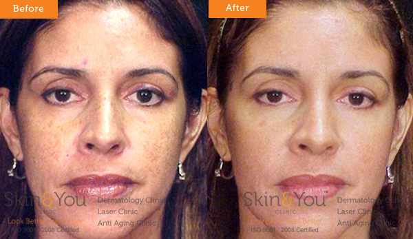 COSMELAN DEPIGMENTATION TREATMENT