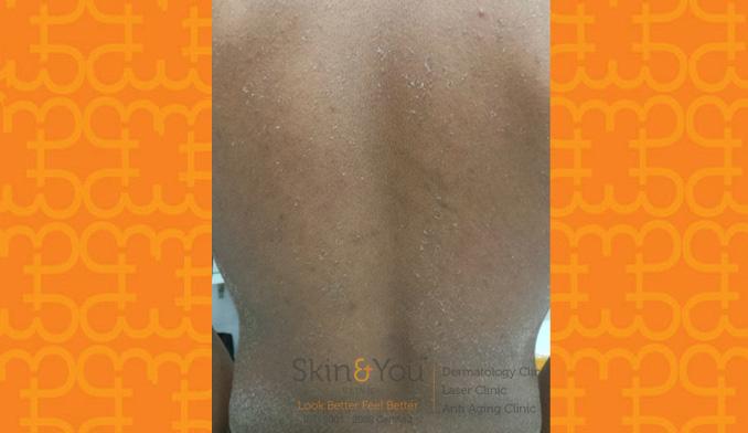 Dry Skin / Xerosis
