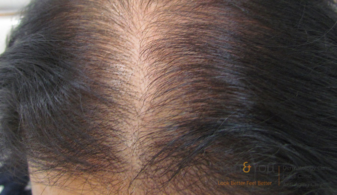 female-hairloss