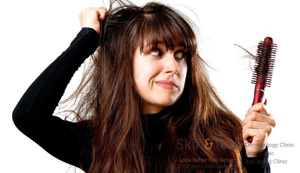 LOW LEVEL LIGHT LASER FOR HAIR LOSS