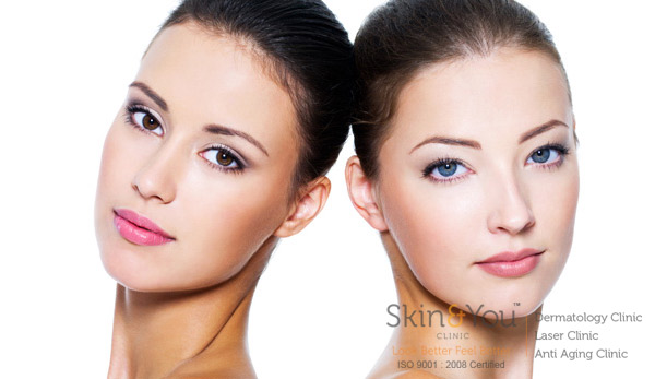SKIN POLISHING (MICRODERMABRASION)