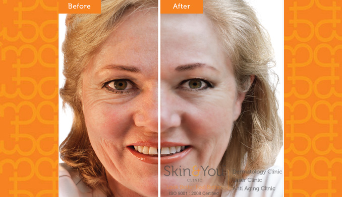 Alma V Shape Face Tightening/ Contouring