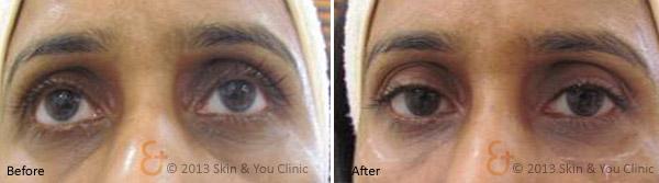 Skin and You Dark Circle Treatment
