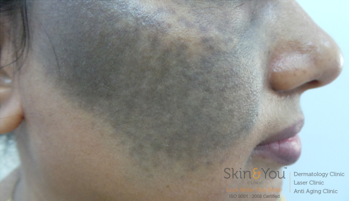 Birth Mark Treatment