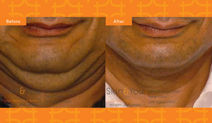 Alma Double Chin  Radio frequency  Skin Tightening