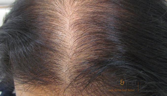 female-hairloss