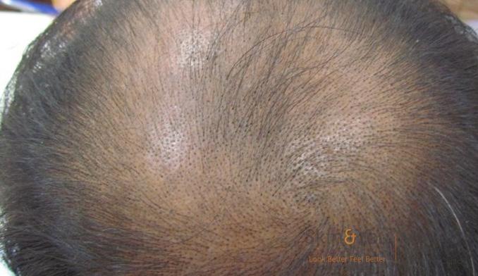 mail-hair-loss