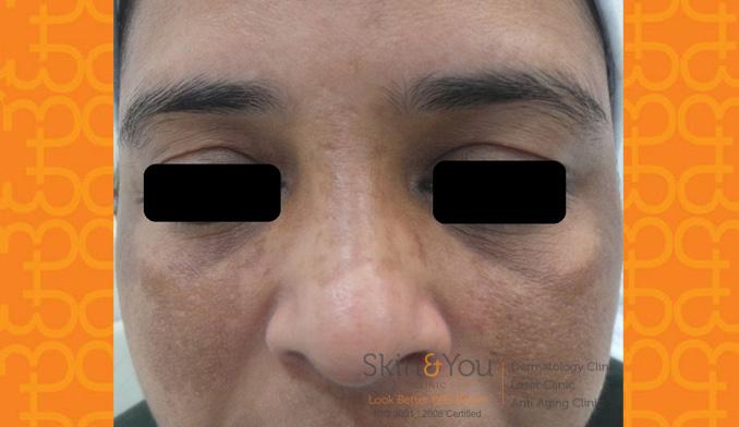 Pigmentation (Melasma / Freckles)