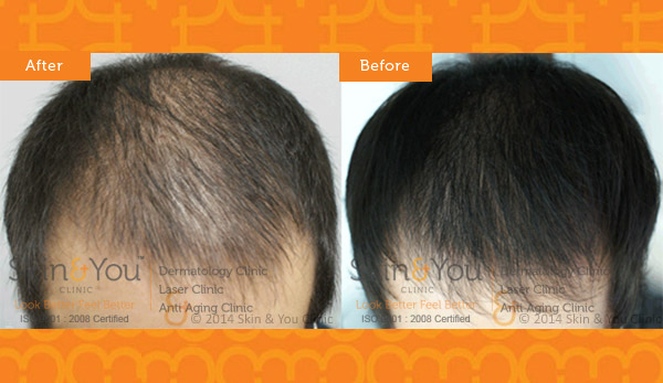 PRP FOR HAIR LOSS TREATMENT