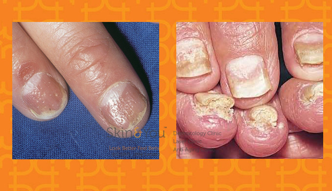 psoriasis-in-nails