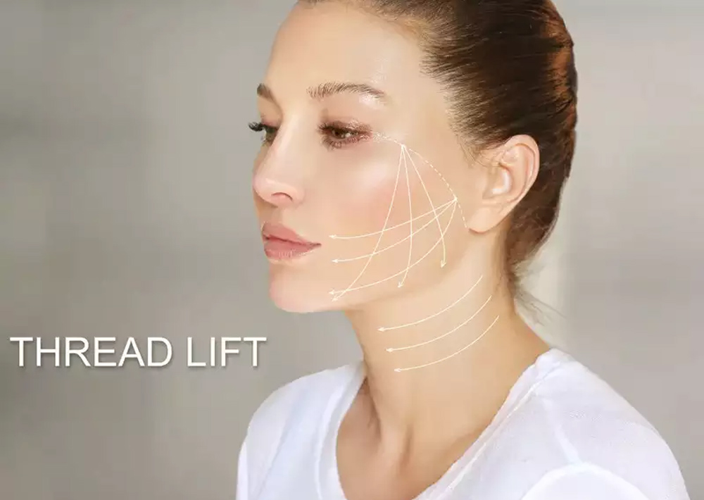 Dr. Geeta's article on Everything you wanted to know about threadlift
